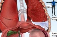 Bệnh về phổi thường gặp: Tìm hiểu về bệnh tràn dịch màng phổi