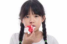 Chảy máu cam là bệnh gì? Những điều bạn cần biết