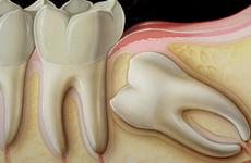 Tác hại không tưởng của răng khôn mọc lệch