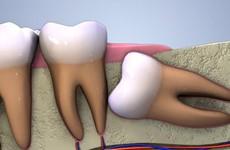 Răng khôn mọc kẹt - Cái nhìn chân thực từ chuyên gia