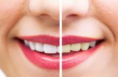 9 tuyệt chiêu giúp làm trắng răng hiệu quả