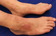 Viêm da cơ địa ở chân - Làm sao để biết mình mắc bệnh ?