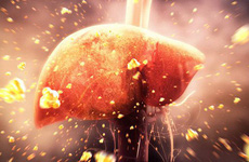 Men gan là gì? Phân loại men gan, men gan như thế nào là bình thường