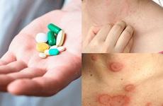 Cách nhận biết người bị dị ứng thuốc và biện pháp đối phó