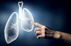 Cách chọn thuốc kháng sinh điều trị viêm phổi và những lưu ý về tác dụng phụ
