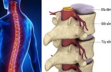 Phòng tránh thoát vị đĩa đệm thắt lưng bằng các tư thế đúng trong sinh hoạt