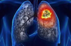 Phân biệt các triệu chứng ho: Khi nào là bệnh lý thông thường, khi nào là biểu hiện của bệnh ung thư