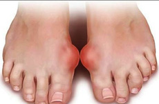 Các nguyên tắc chăm sóc bệnh nhân bị bệnh gout cần được chú ý đặc biệt
