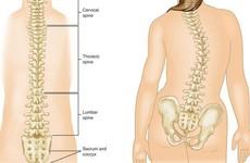 Lý do vì sao phẫu thuật điều trị cong vẹo cột sống không phải là phương pháp ưu tiên hàng đầu