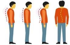 5 hiểu lầm về bệnh lý cong vẹo cột sống