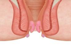 Các phương pháp điều trị trĩ nội độ 3