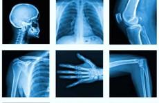 Các phương pháp xét nghiệm X- quang cột sống