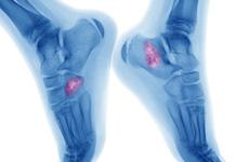 Nhận biết 4 biểu hiện của u xương ác tính
