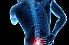Phục hồi chức năng cho người bệnh gai cột sống