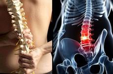 3 nguyên tắc quan trọng trong điều trị gai cột sống
