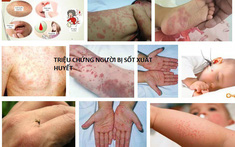 6 biểu hiện sốt xuất huyết điển hình và cách phân biệt chi tiết