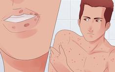 Chữa bệnh lậu bằng thuốc đông y đơn giản mà hiệu quả tức thì