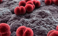 Những điều cần biết về bệnh viêm màng não