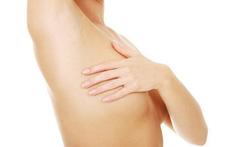 Ung thư vú di căn hạch nách: Dấu hiệu, chẩn đoán, tiên lượng và điều trị