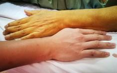 Vàng da là bệnh gì? Điểm mặt những căn bệnh gây hiện tượng vàng da