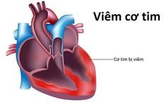 """Kết quả điều tra 2 ca tử vong do """"virus viêm cơ tim"""" và phản ứng của các bác sỹ trước tin đồn liên quan"""