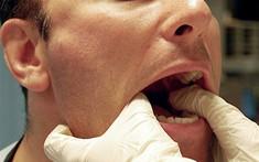 Chỉ dẫn cách phân biệt ung thư vòm họng và viêm họng hạt