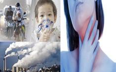 Điểm nhanh 5 nguyên nhân gây bệnh viêm họng thường gặp