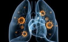 Tổng hợp 8 nguyên nhân viêm phổi thường gặp