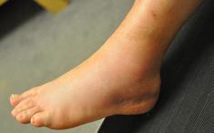 Bệnh gout và bong gân: Cùng có những dấu hiệu giống nhau, làm thế nào để phân biệt?