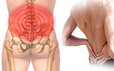 Yếu tố nguy cơ nào khiến bạn dễ bị đau lưng hơn?