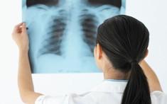 Chẩn đoán bệnh đau lưng bằng phương pháp chụp X- quang