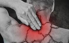 Thuốc điều trị đau mỏi vai gáy có thể gây ra những tác dụng phụ nào?