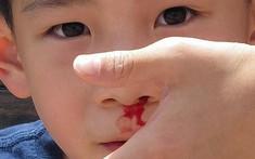 Chảy máu cam có thể là dấu hiệu cảnh báo bạn đã mắc ung thư máu!