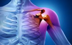 Phân biệt bệnh ung thư xương và gai xương