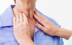 Cách đối phó với chứng khó nuốt ở bệnh nhân ung thư thực quản