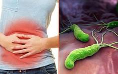 5 phương pháp sàng lọc sớm phát hiện vi khuẩn hp dạ dày