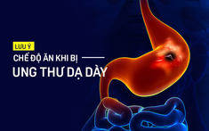 Chế độ ăn của người ung thư dạ dày: những lưu ý để tránh bệnh trầm trọng hơn