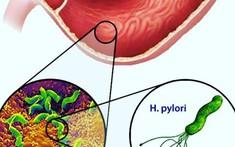 Viêm teo, dị sản ruột dẫn đến ung thư dạ dày, phòng tránh bằng cách nào?