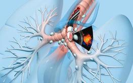 Ung thư khí quản là gì? Những điều cần biết để phòng và điều trị ung thư khí quản