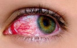 Sai lầm khi chăm sóc người bị đau mắt đỏ khiến tình trạng bệnh trở nên nặng hơn