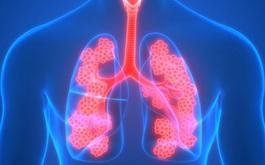 Tiêm phòng vắc-xin trong phòng tránh bệnh phổi tắc nghẽn mãn tính (COPD)