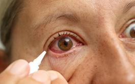 Các biện pháp hỗ trợ điều trị đau mắt đỏ tại nhà giúp giảm bớt các triệu chứng khó chịu