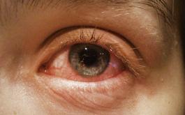 Tổng hợp từ A đến Z về các biến chứng đau mắt đỏ mà người bệnh có nguy cơ mắc phải
