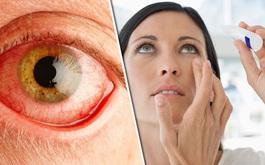 Xuất huyết dưới kết mạc là gì? Đau mắt đỏ chảy máu có nguy hiểm không?