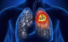 Phát hiện sớm 5 bệnh ung thư thường gặp