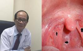 Ngạt mũi đau họng là bệnh gì? Chuyên gia chỉ rõ 6 dấu hiệu điển hình của ung thư vòm họng