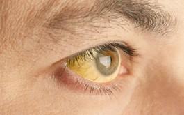 Mẩn ngứa phát ban cũng có thể là dấu hiệu sớm của viêm gan