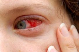 Bác sĩ Viện mắt Hà Nội: Mùa mưa bão tháng 10 - 11 là thời điểm của bệnh đau mắt đỏ!