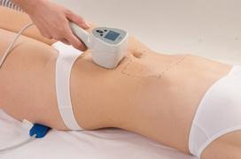 Tổng hợp các phương pháp điều trị rạn da sau sinh