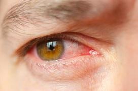 """Muốn phòng tránh nhiễm trùng mắt mùa mưa cần ghi nhớ 5 """"nên"""" và 2 """"tránh"""" dưới đây của chuyên gia"""